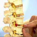 Виды и способы лечения межпозвоночной грыжи