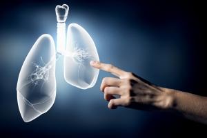 Учеными разработан анализ крови, определяющий вероятность развития туберкулеза